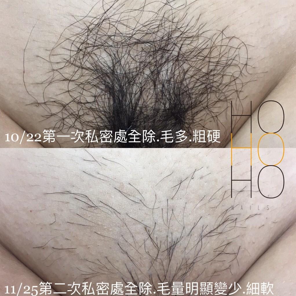 私密處熱蠟美肌除毛實例圖片,經過第一次的除毛,一個月後毛量明顯減少,毛髮變很細軟,無痛安全舒適的私密處巴西式全除,就是這麼舒適有效。
