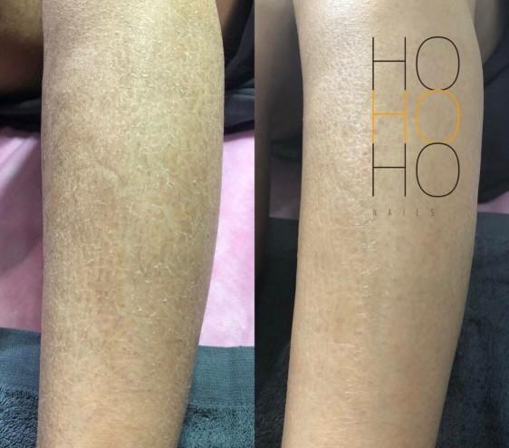 熱蠟美肌除毛,專業安全讓您不再經歷脫皮惡夢,手毛腳毛不再困擾,保濕度及蠟前蠟後的保養一次到位,台北高雄最專業的無痛熱蠟除毛,私密處除毛體驗首選,隱密安全舒適,在最輕鬆的環境下完成最棒的私密體驗。